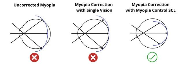 softmyopia